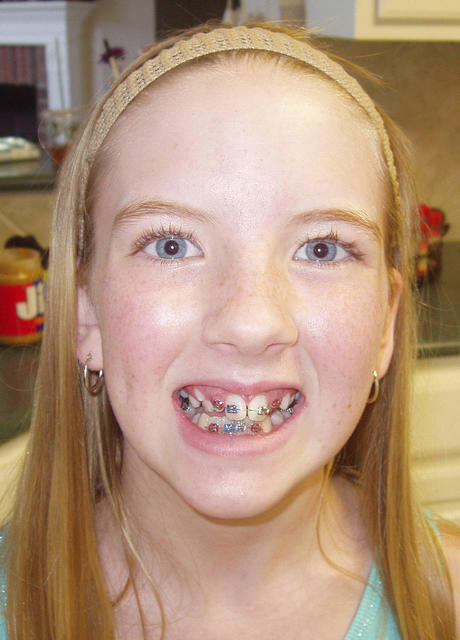 hannahbraces